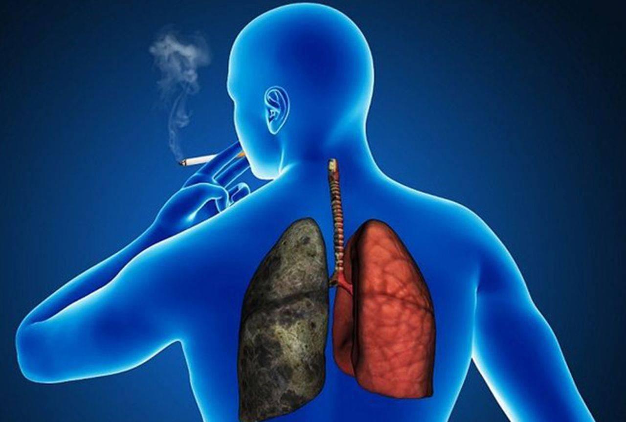 Можно ли курить при кашле и бронхите - лор-заболевания
