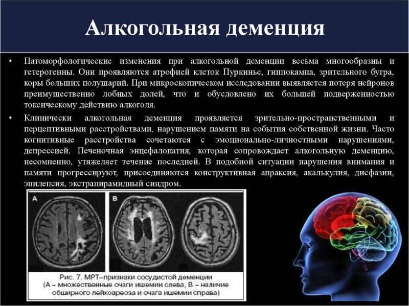 Алкогольная энцефалопатия ⋆ болезнь вернике ⋆ лечение