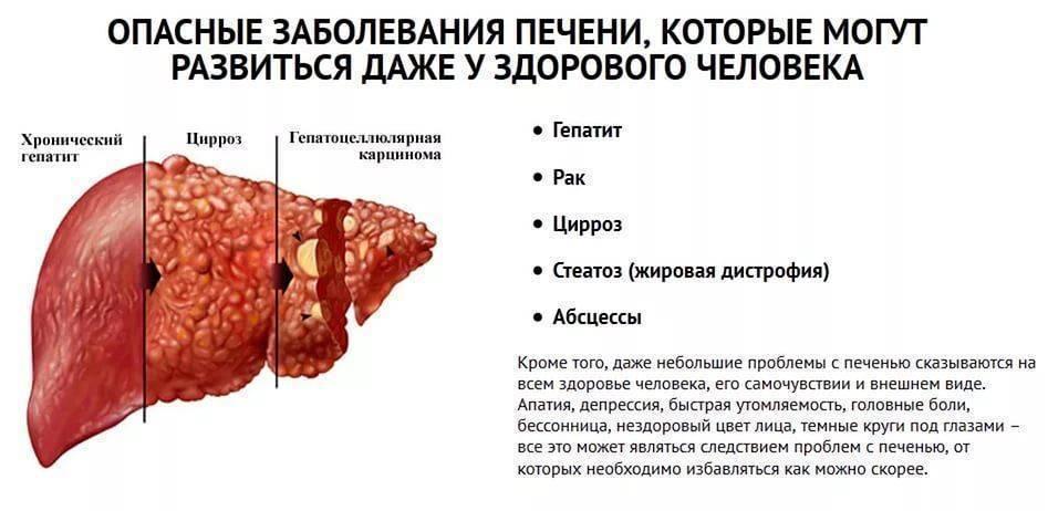 Терминальная стадия цирроза печени
