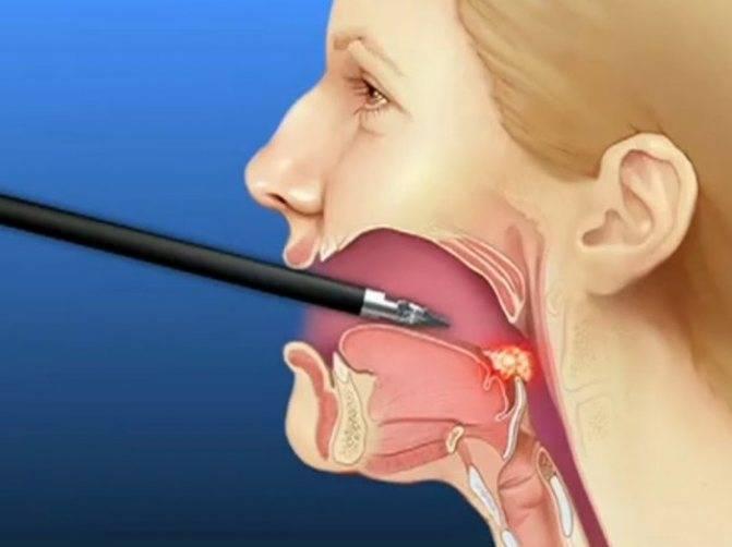 Першение в горле – причины, что делать