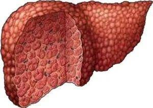 Чем отличается рак печени от цирроза печени: одно и тоже или нет