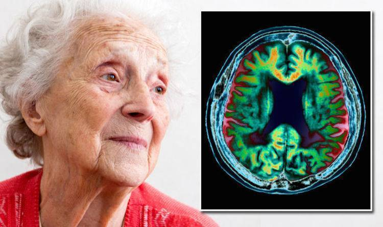 Сенильная дегенерация головного мозга                (слабоумие, старческий маразм)