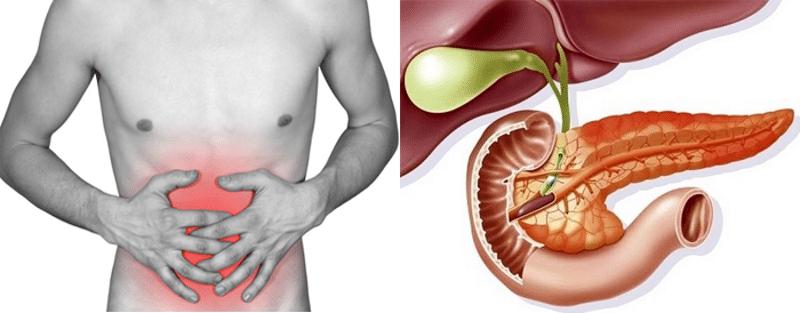 Панкреатит: симптомы воспаления поджелудочной железы и меры лечения