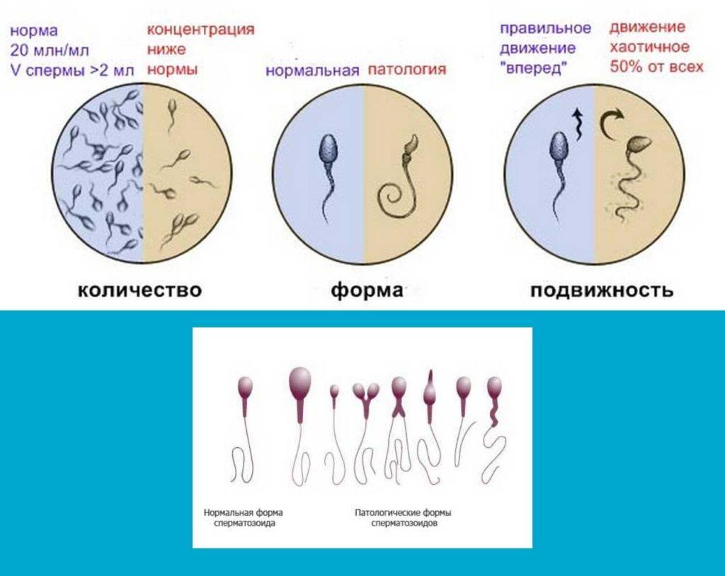 Можно ли пить алкоголь перед спермограммой