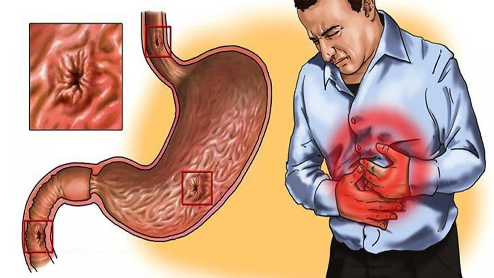 Боли в желудке после алкоголя: причины возникновения и лечение