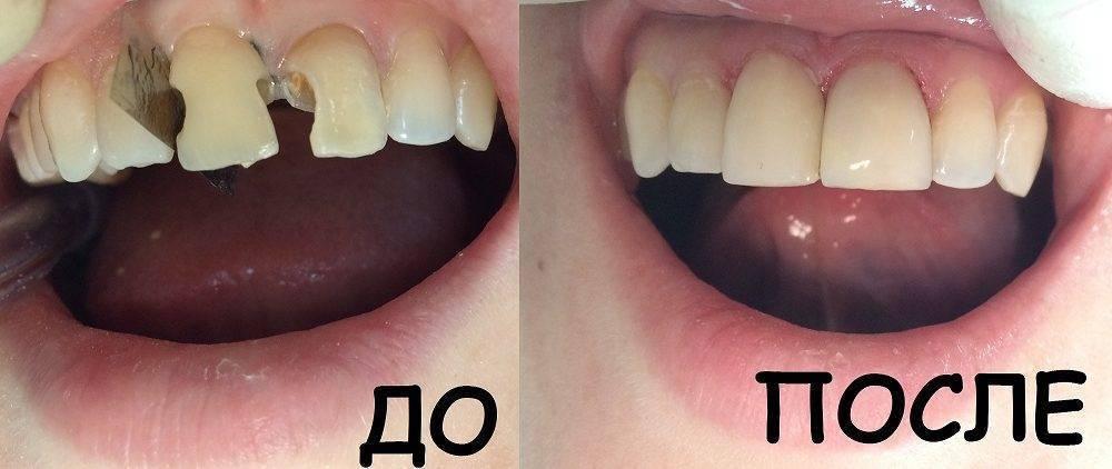 Сколько нельзя есть после пломбирования зуба?