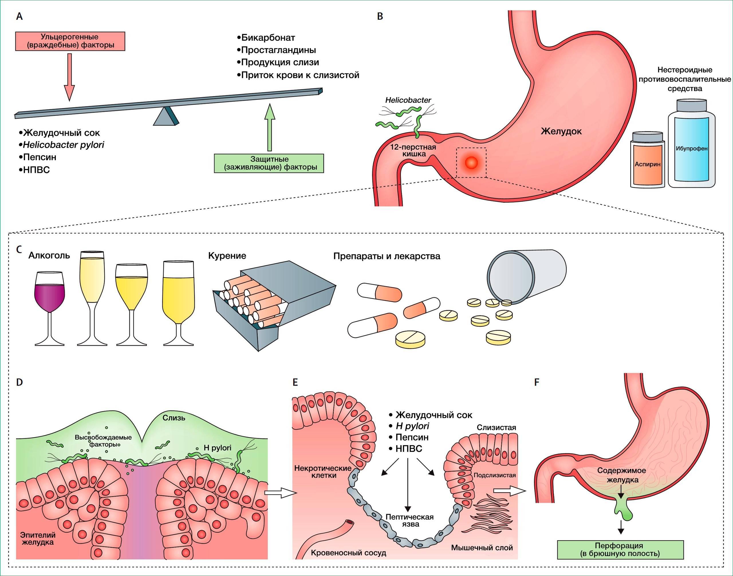Можно ли пить водку при язве желудка и двенадцатиперстной кишки?