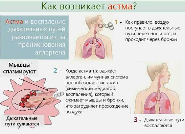 Можно ли пить алкоголь при бронхиальной астме | стоп алкоголизм