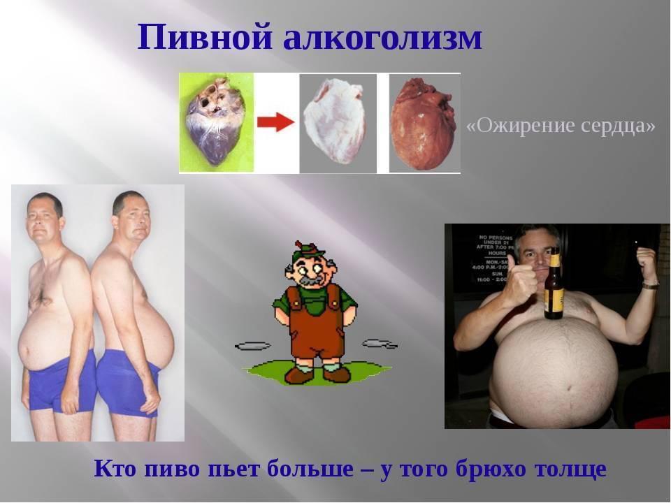 Стадии и симптомы пивного алкоголизма: как отказаться от пива, лечение