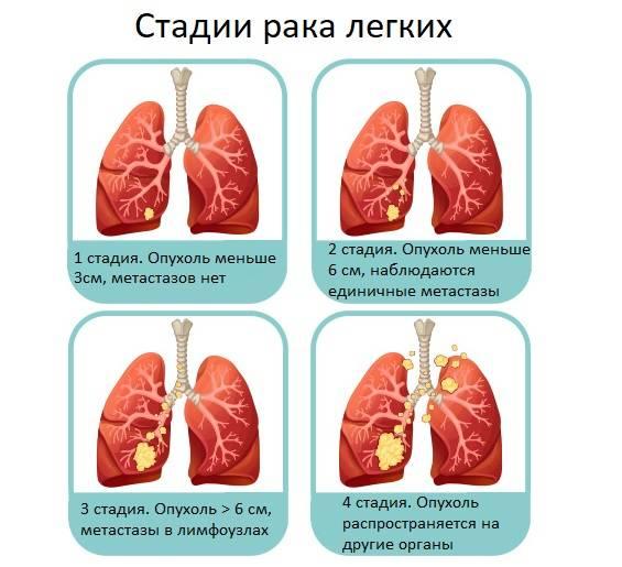 Рак желудка 3 стадии