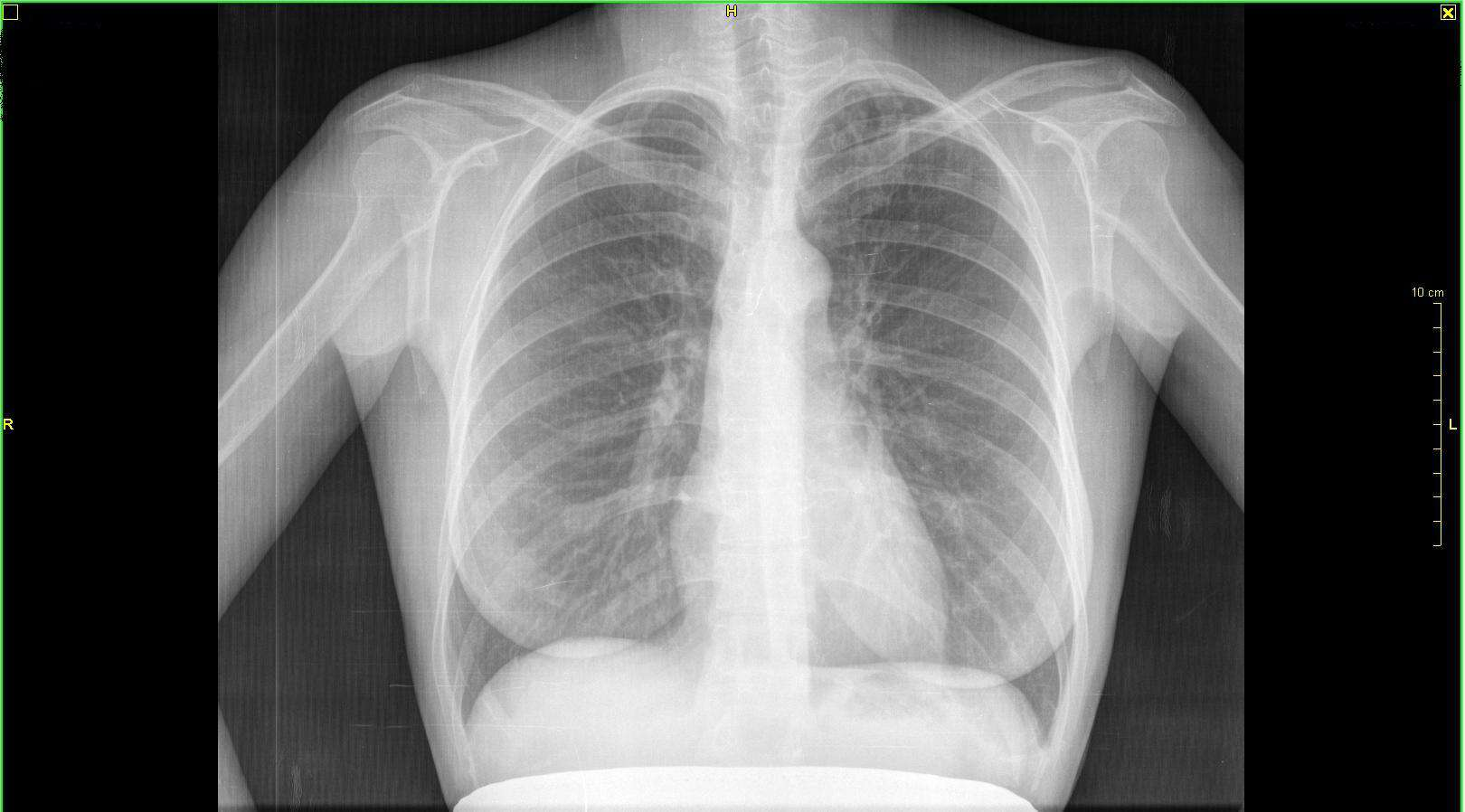 Здоровые лёгкие на рентгене | wine & water