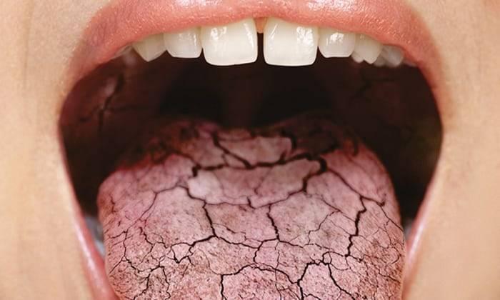 Сухость во рту: причины и устранение болезни | врачиха.ру - медицинский портал