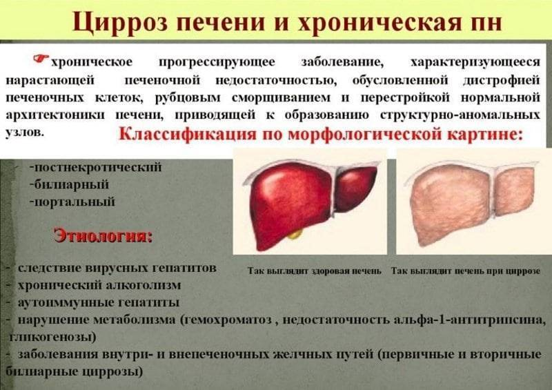Лечение цирроза печени: как остановить смертельное заболевание? - всё о склерозе