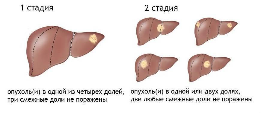 Чем отличается цирроз печени от рака?