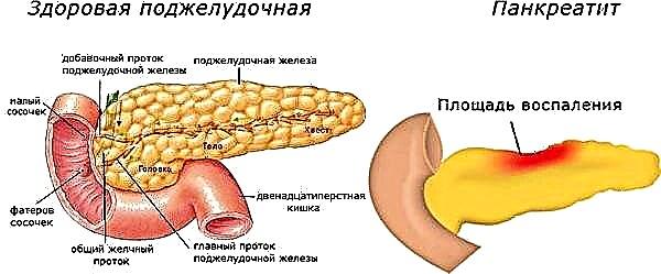 Влияние никотина на поджелудочную железу