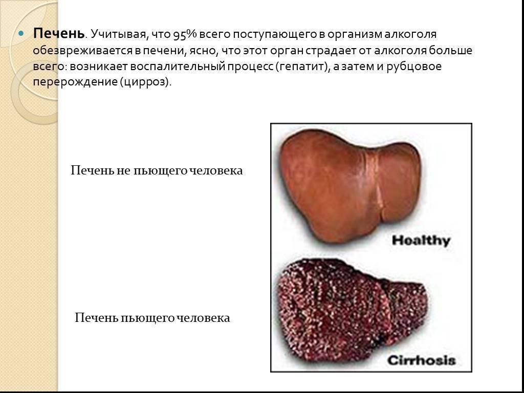 Стадии алкогольного гепатоза и способы лечения болезни