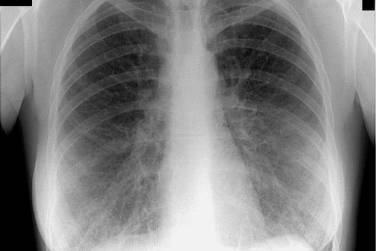Как выглядит рентгеновский снимок здоровых легких: фото, описание