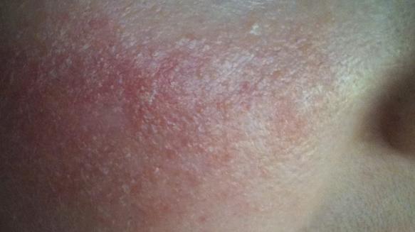 Аллергия на алкоголь: причины возникновения аллергической реакции и красных пятен на лице и теле