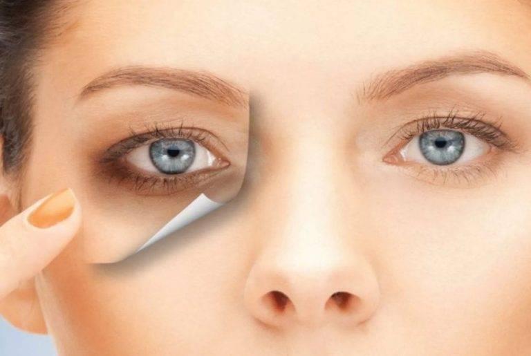 5 советов как убрать отек под глазом после удара
