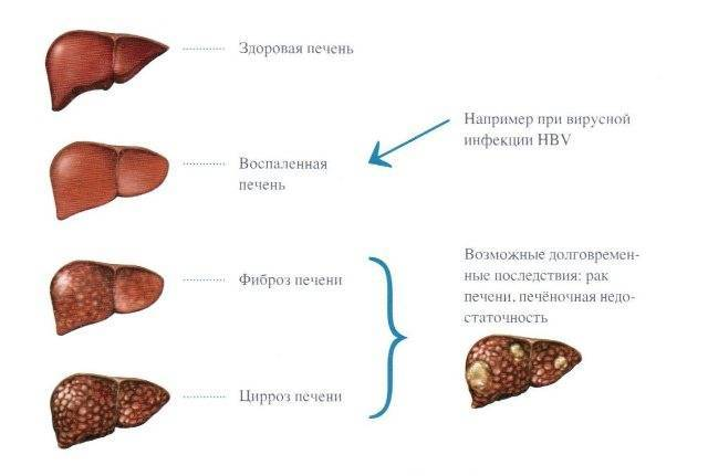 Чем опасно развитие мелкоузлового цирроза печени, и как его лечить