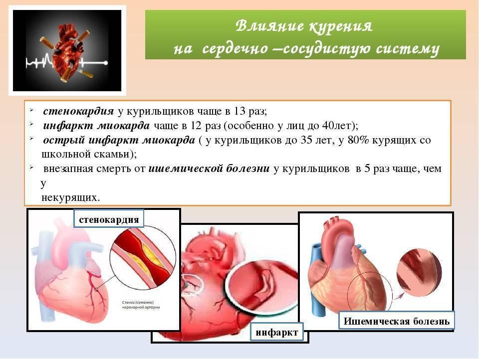 Курение и острое нарушение кровообращения: почему от сигарет болит сердце