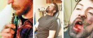 Почему после курения болит голова: причины и профилактика болей