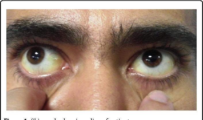 Желтые глаза: причины и лечение белков глаз, симптомы пожелтения склер у человека