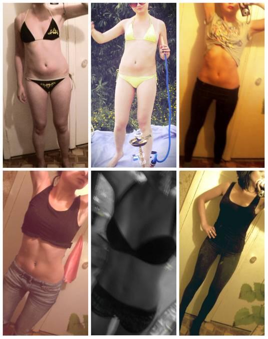 Флуоксетин для похудения, как сбросить вес на флуоксетине
