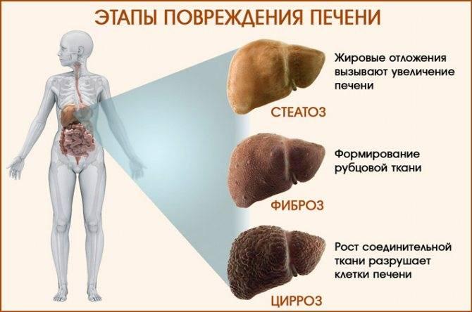 Декомпенсированный цирроз печени: симптомы, лечение, прогноз