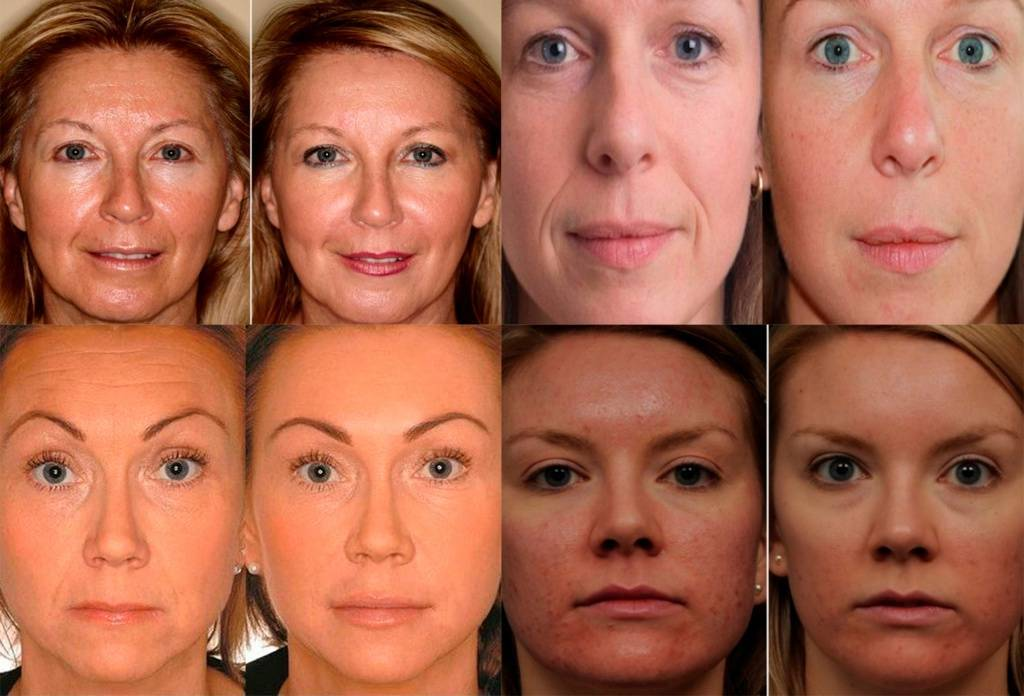Одутловатое лицо: причины пастозности и способы лечения