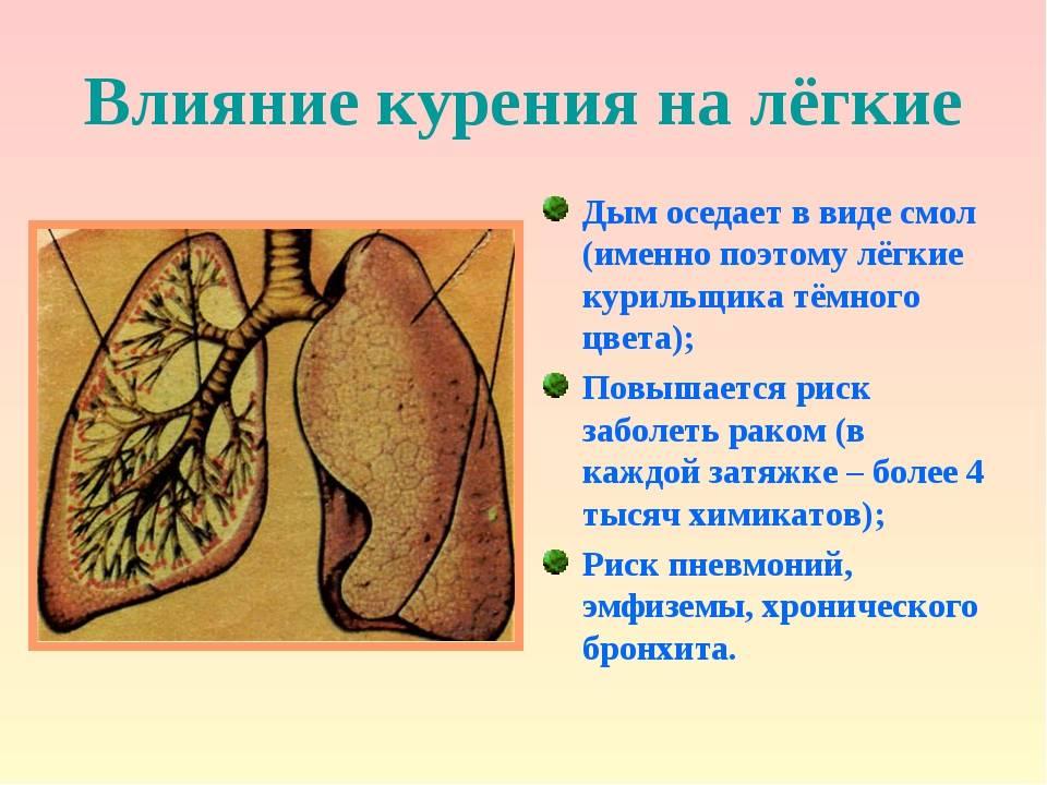 Болезни органов дыхания вследствие курения