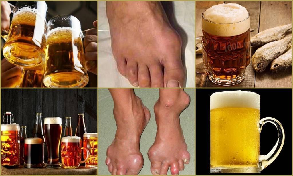 Польза и вред пива со сметаной