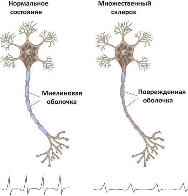 Лечение народными средствами рассеянного склероза