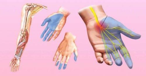 С похмелья немеют руки: как лечить?