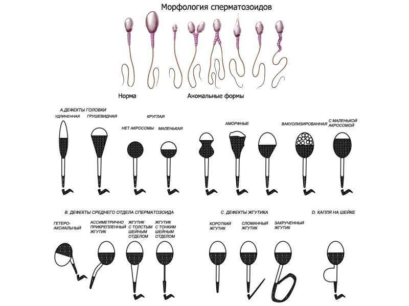 Алкоголь перед спермограммой