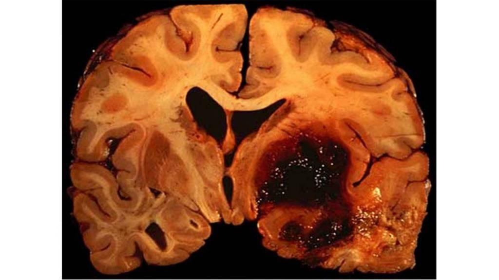 Если отек мозга есть ли шанс выжить - травматолог.ру