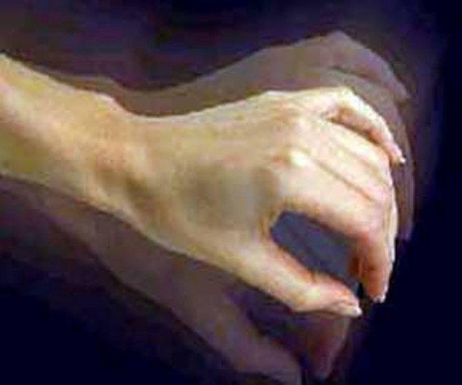 Дрожь рук при похмелье: насколько это опасно и как от нее избавиться