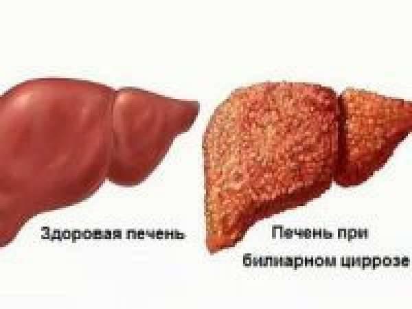 Болезни печени: симптомы, причины и профилактика