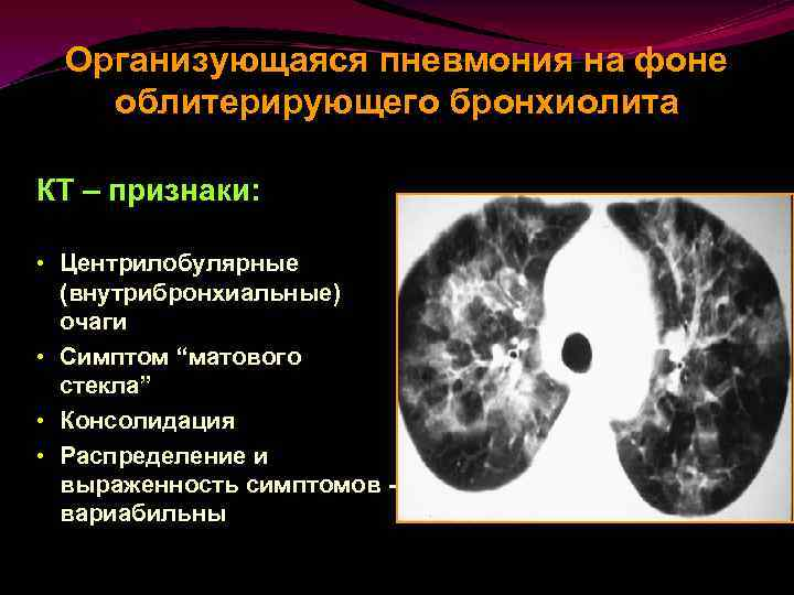 Бронхиолит у взрослых - одна из причин затяжного и хронического кашля