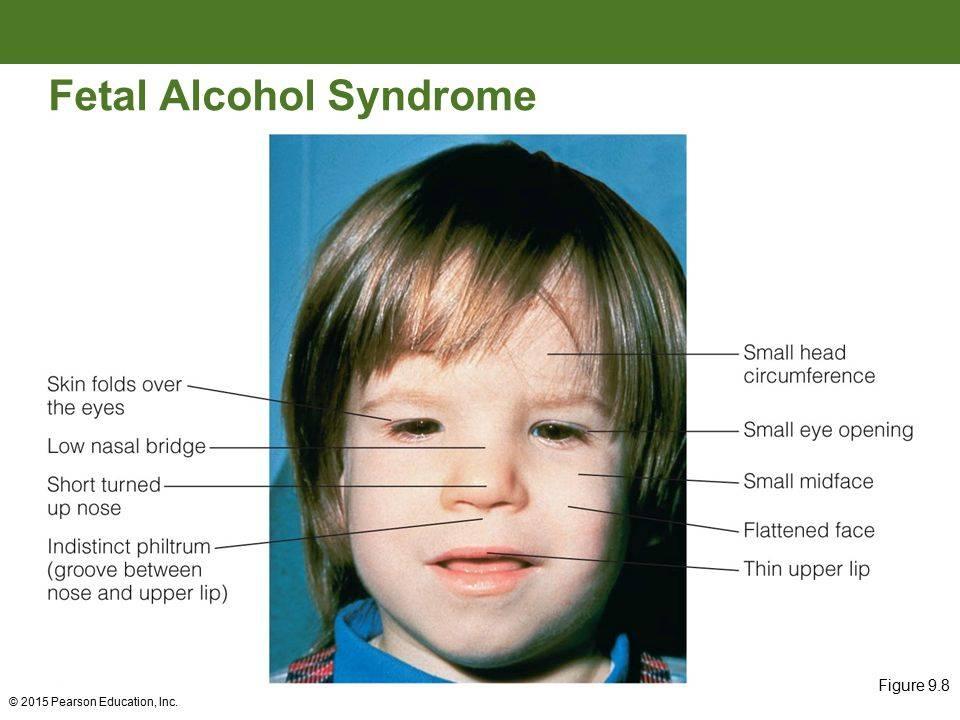 Взрослые дети алкоголиков: фото, психология