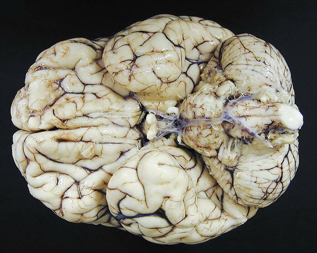 Смерть от отека мозга причины