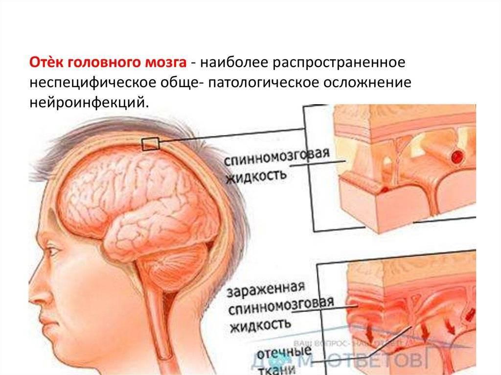 Отек мозга – причины, симптомы, последствия, прогноз для жизни. отек головного мозга – лечение - терапевтonline