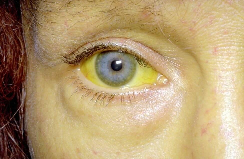 Почему появляются желтые склеры глаз у взрослых?