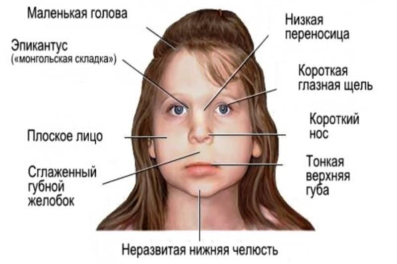 Дети алкоголиков: внешние и психические признаки, синдром вда