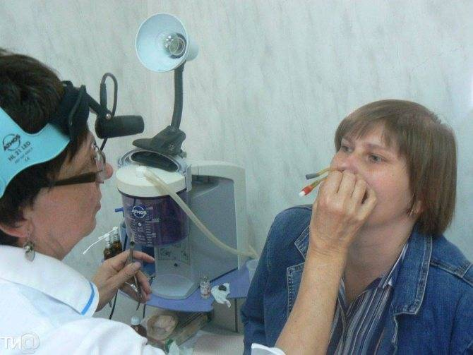 Курение во время гайморита - clinicademidov.ru