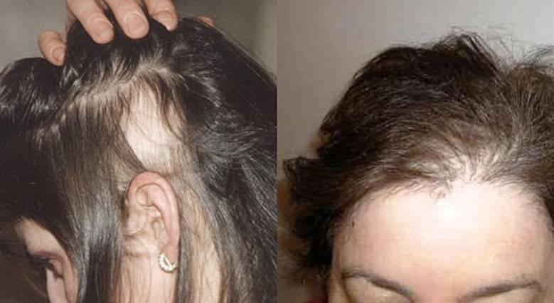 Как отражается курение на состоянии волос