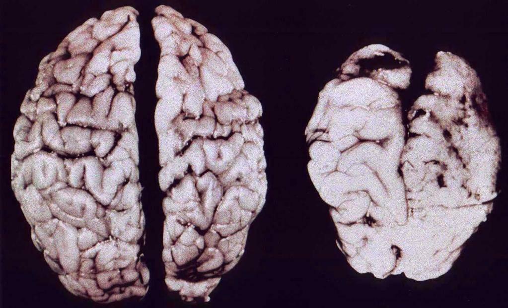 Восстановление головного мозга после алкоголя   здоровье вашей головы