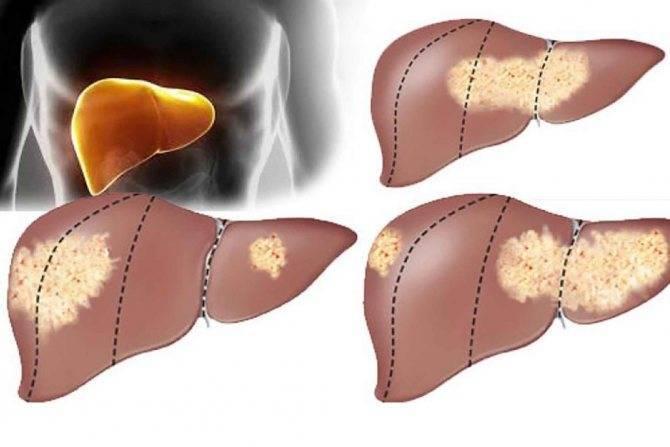 Чем отличается рак печени от цирроза печени   в чем разница