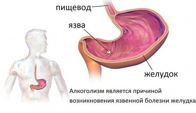 Болит желудок после алкоголя, чем лечить боли с похмелья после пьянки