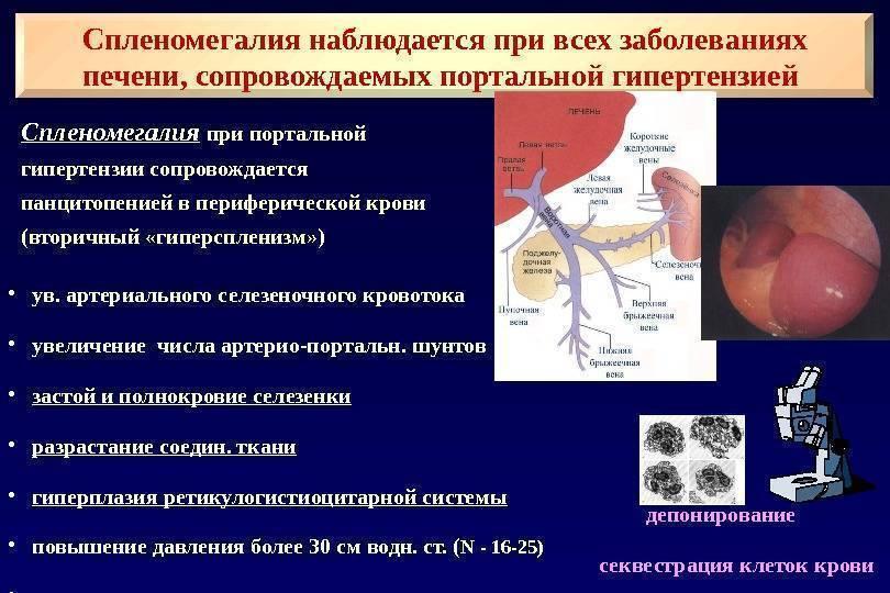 Портальный цирроз печени - всё о печени